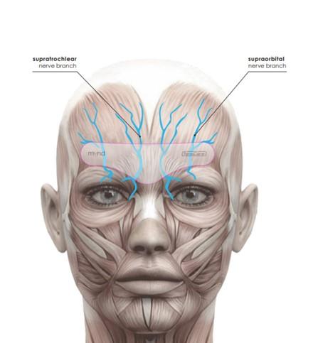 MYND-migreenipanta toiminta migreenin ja päänsäryn hoidossa